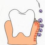 日本人の70%がもつ「歯周病」の怖さ!?