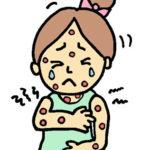 花粉症で「じんましん」が出る?